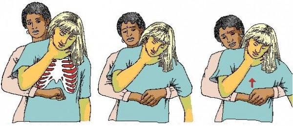 maniobra-de-heimlich
