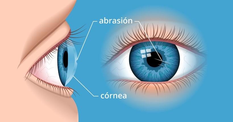 abrasión de la córnea
