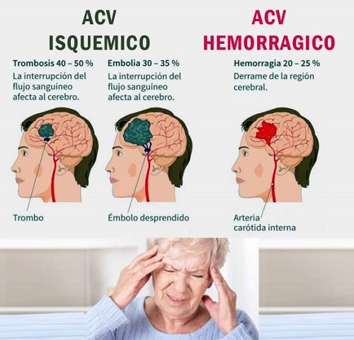 tipos de accidentes cerebrovasculares