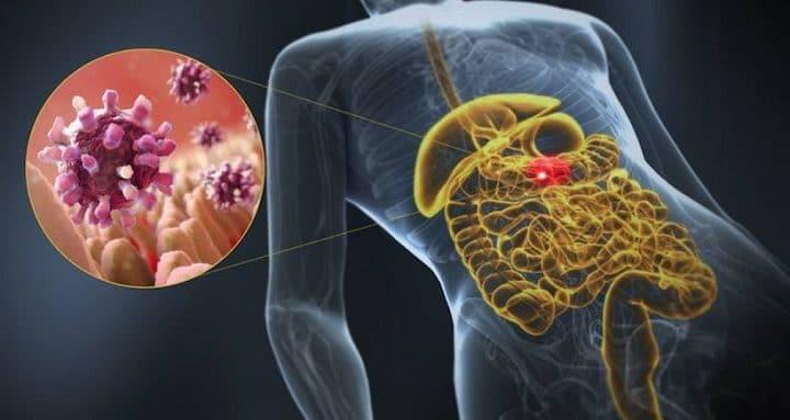 Tratamiento de la gastroenteritis en adultos y niños 2
