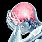 traumatismo de cráneoencefálico primeros auxilios